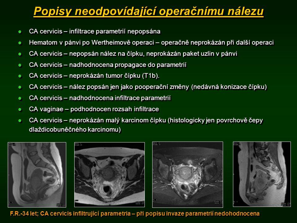 Popisy neodpovídající operačnímu nálezu
