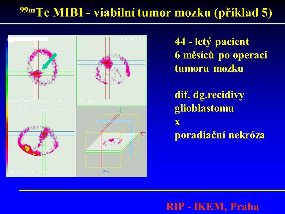 99mTc MIBI - viabilní tumor mozku (příklad 5)
