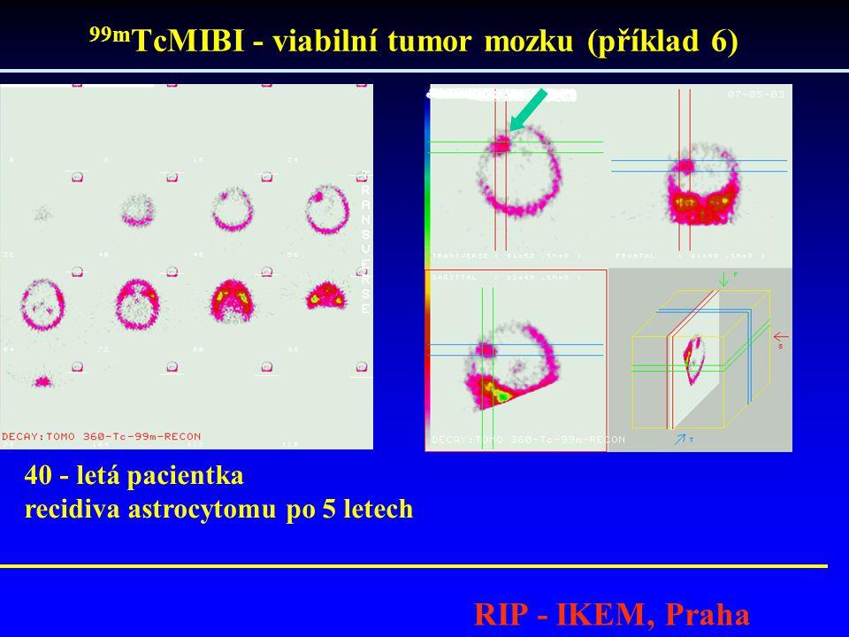 99mTcMIBI - viabilní tumor mozku (příklad 6)