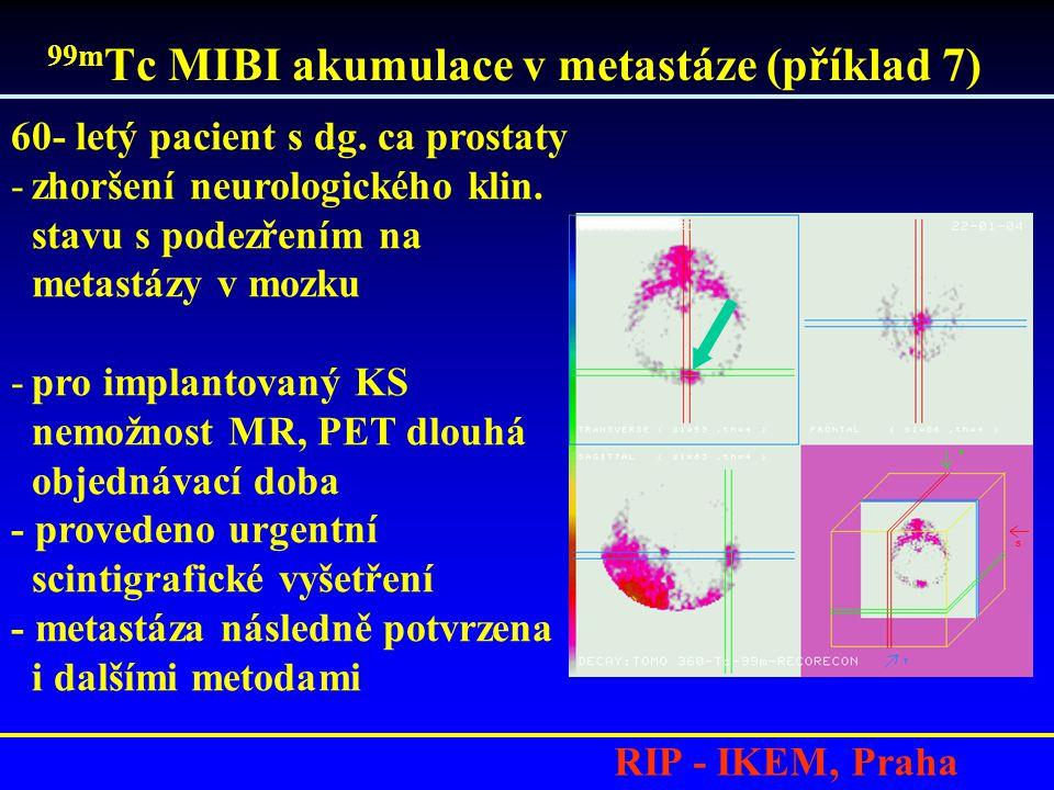 99mTc MIBI akumulace v metastáze (příklad 7)