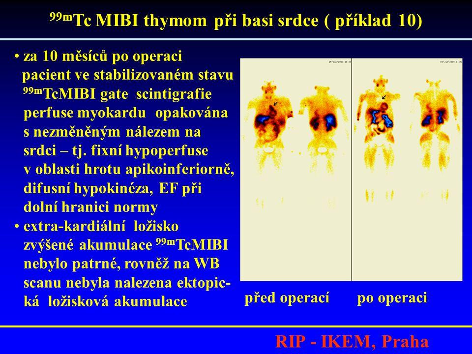 99mTc MIBI thymom při basi srdce ( příklad 10)