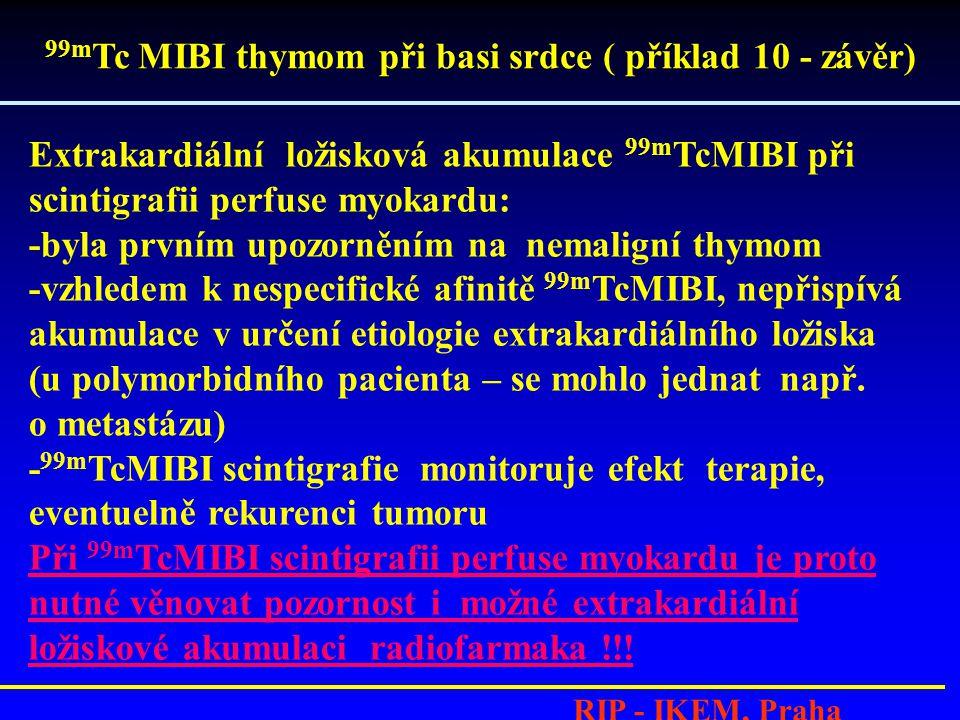 99mTc MIBI thymom při basi srdce ( příklad 10 - závěr)