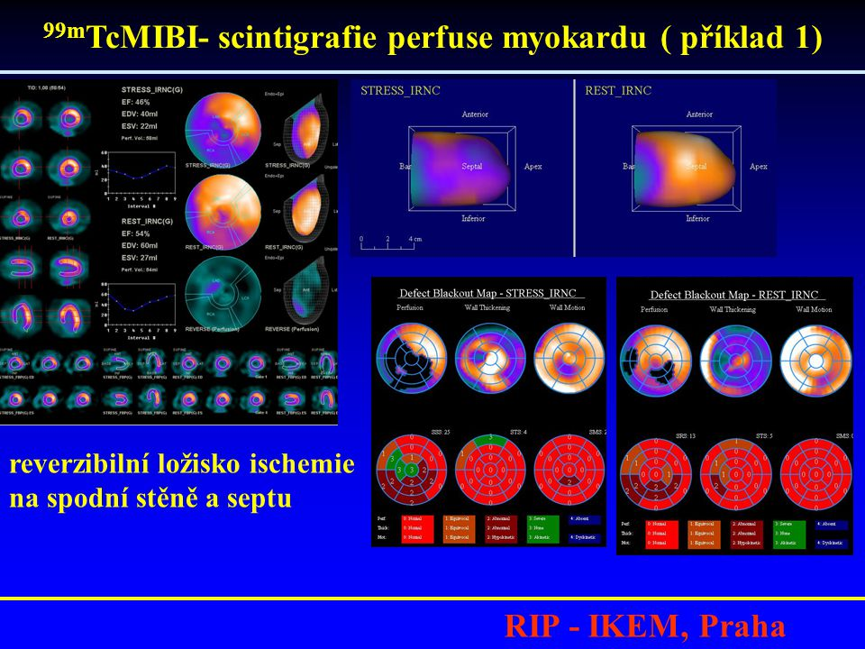 99mTcMIBI- scintigrafie perfuse myokardu ( příklad 1)