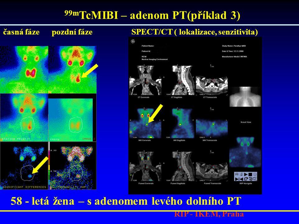 99mTcMIBI – adenom PT(příklad 3)