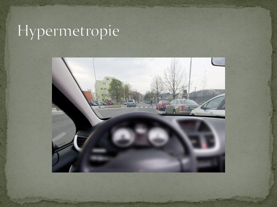 Hypermetropie