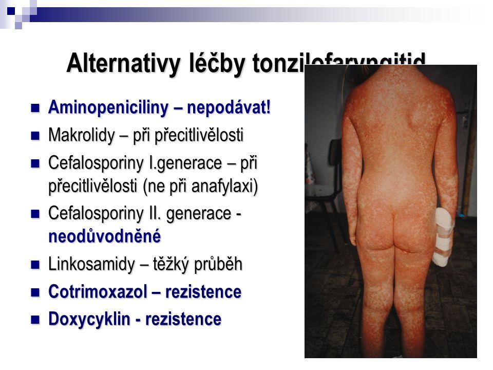 Alternativy léčby tonzilofaryngitid