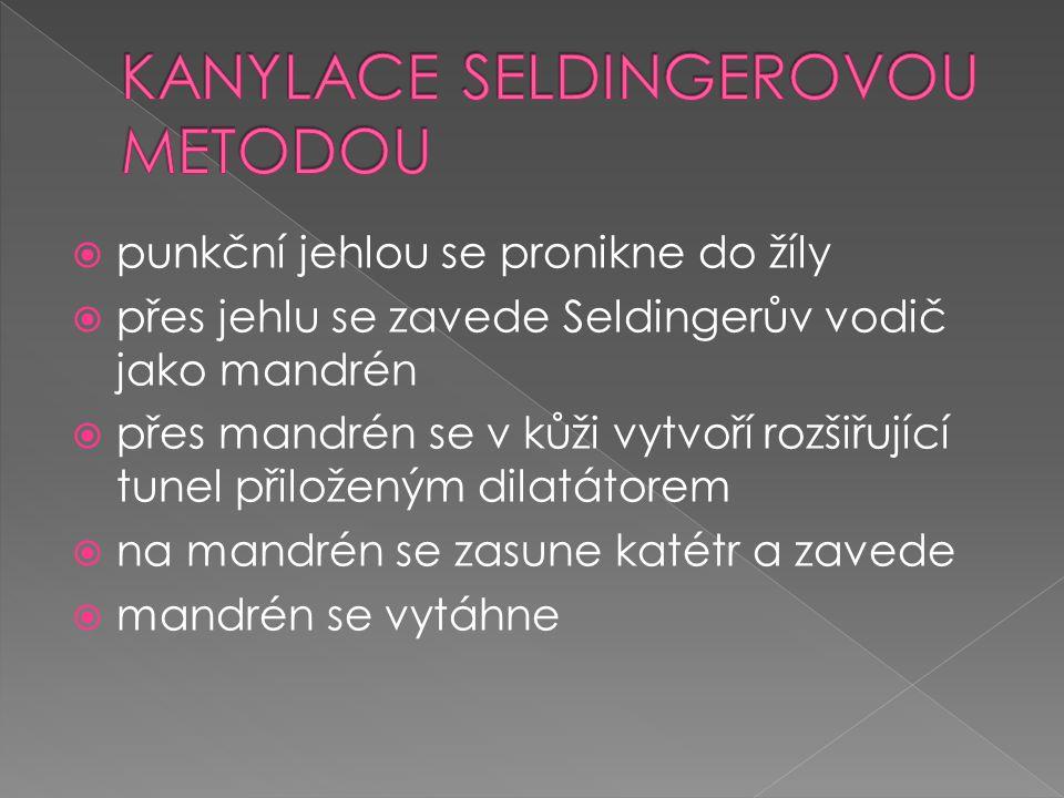 KANYLACE SELDINGEROVOU METODOU