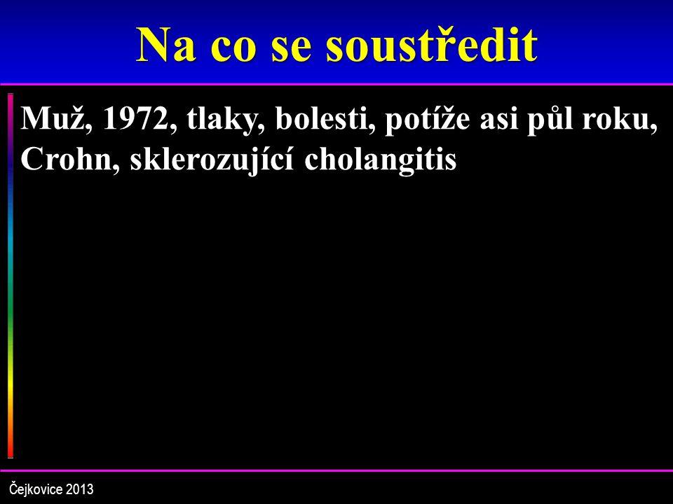 Na co se soustředit Muž, 1972, tlaky, bolesti, potíže asi půl roku, Crohn, sklerozující cholangitis.