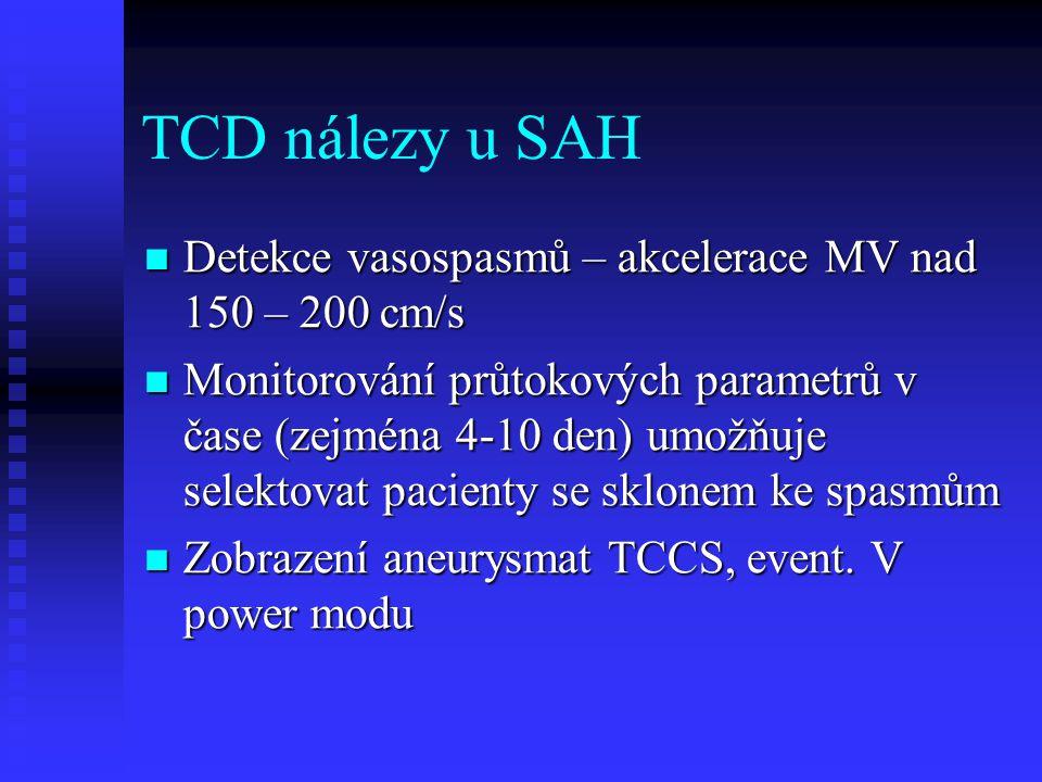 TCD nálezy u SAH Detekce vasospasmů – akcelerace MV nad 150 – 200 cm/s