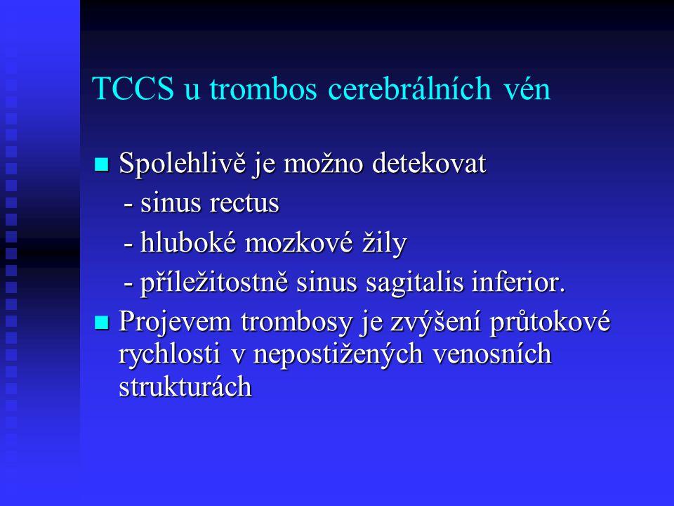 TCCS u trombos cerebrálních vén
