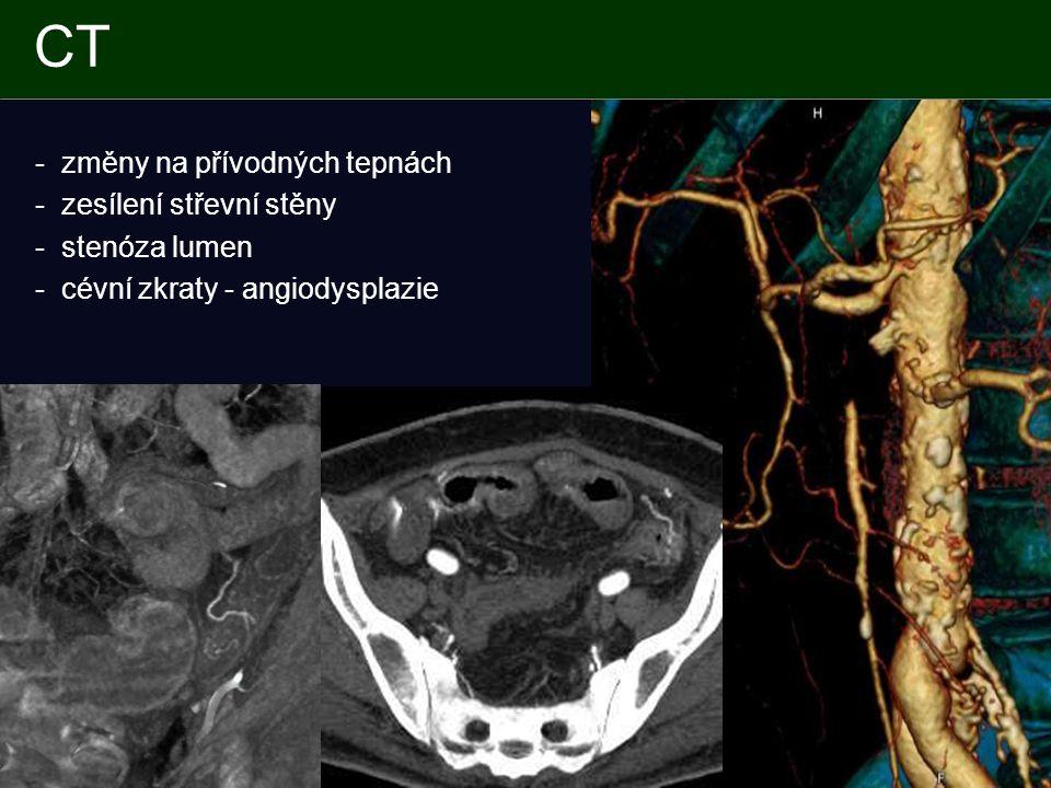 CT - změny na přívodných tepnách - zesílení střevní stěny