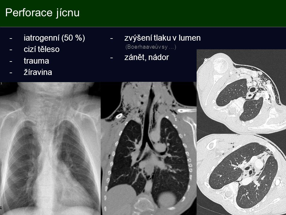 Perforace jícnu iatrogenní (50 %) cizí těleso trauma žíravina