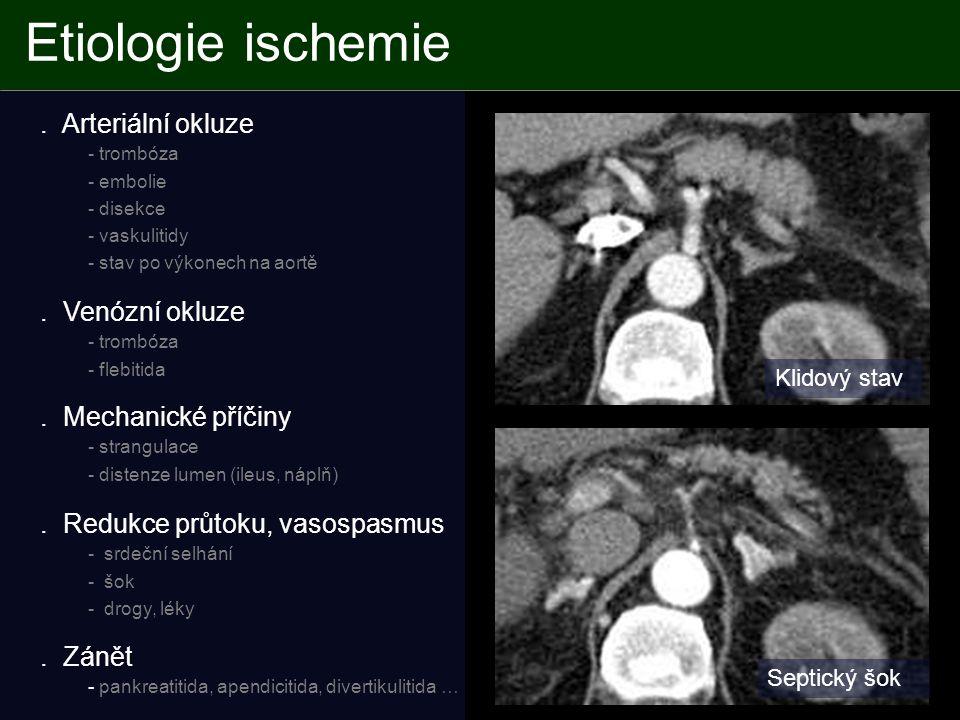 Etiologie ischemie . Arteriální okluze - trombóza . Venózní okluze