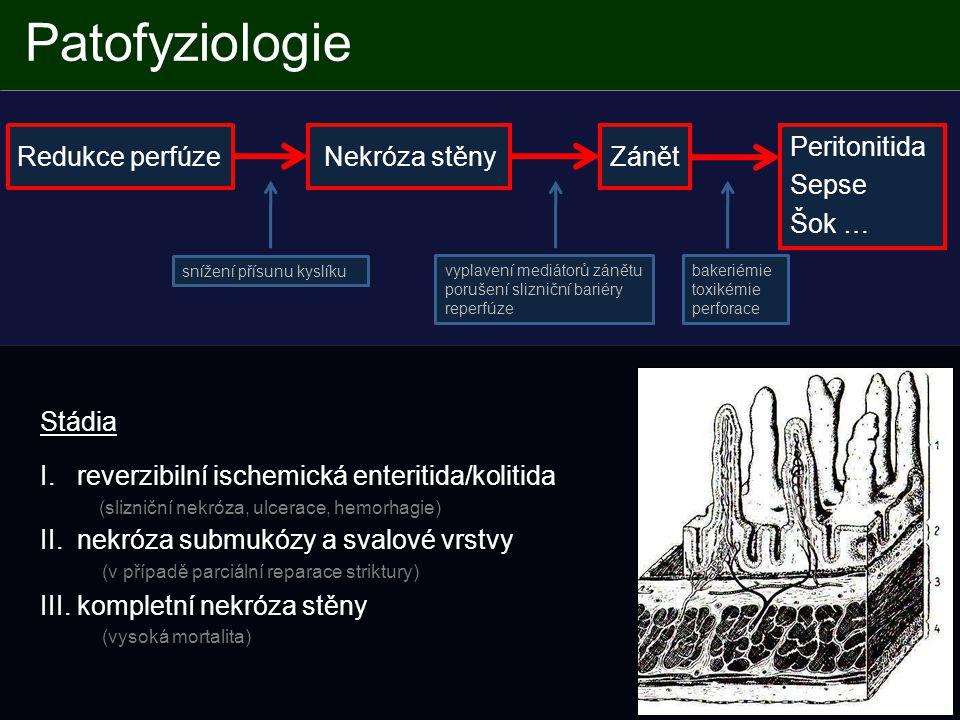 Patofyziologie Redukce perfúze Nekróza stěny Zánět Peritonitida Sepse