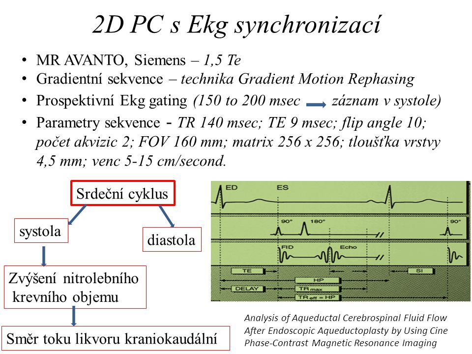 2D PC s Ekg synchronizací