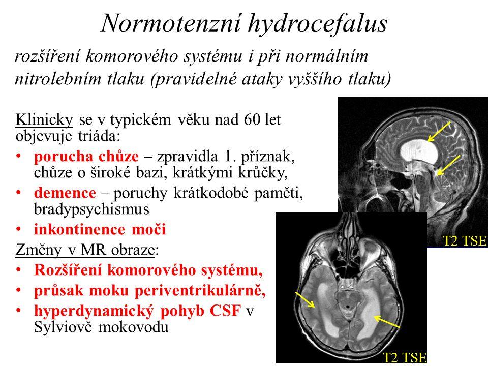 Normotenzní hydrocefalus