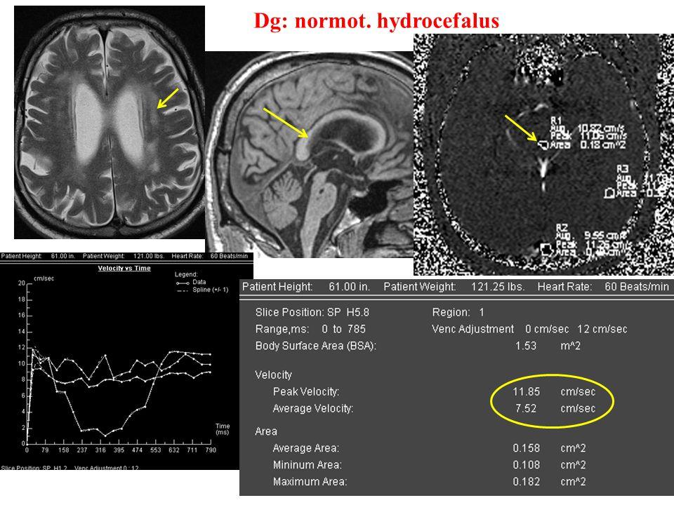Dg: normot. hydrocefalus