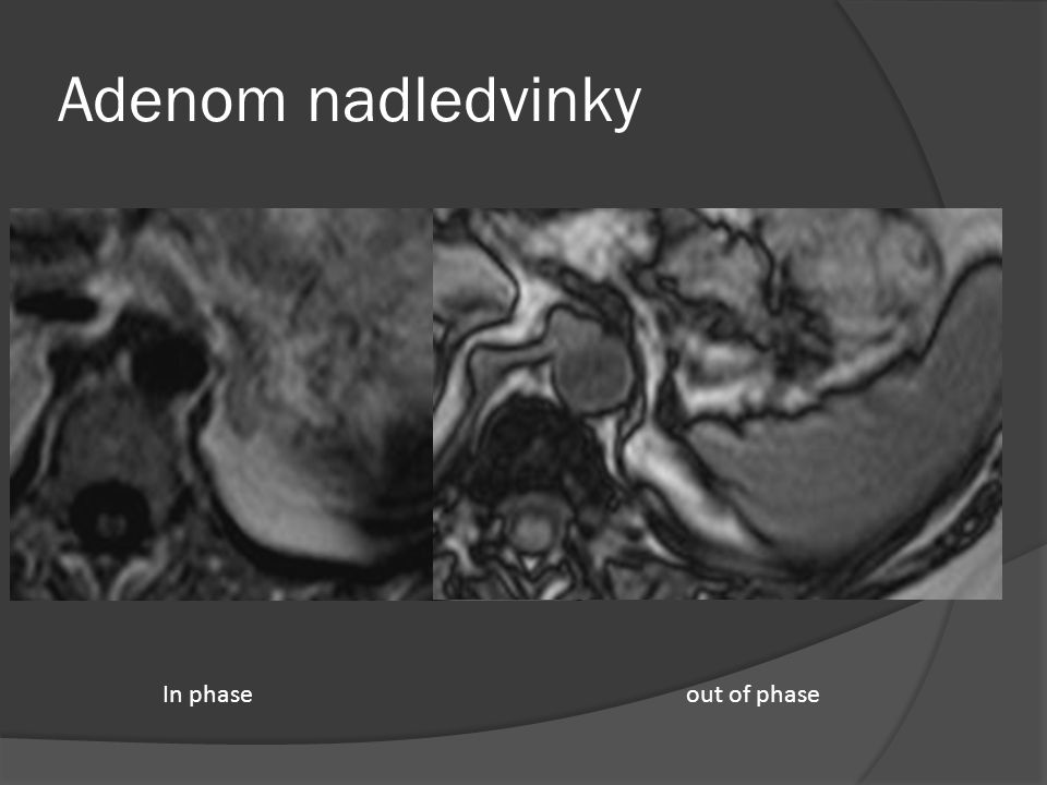 Adenom nadledvinky In phase out of phase