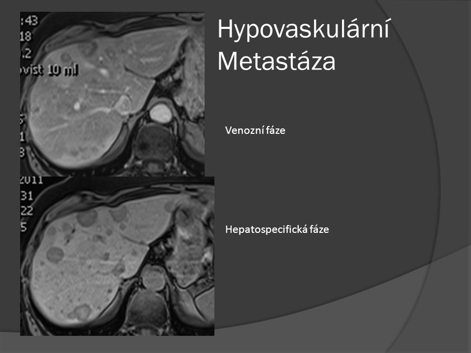 Hypovaskulární Metastáza