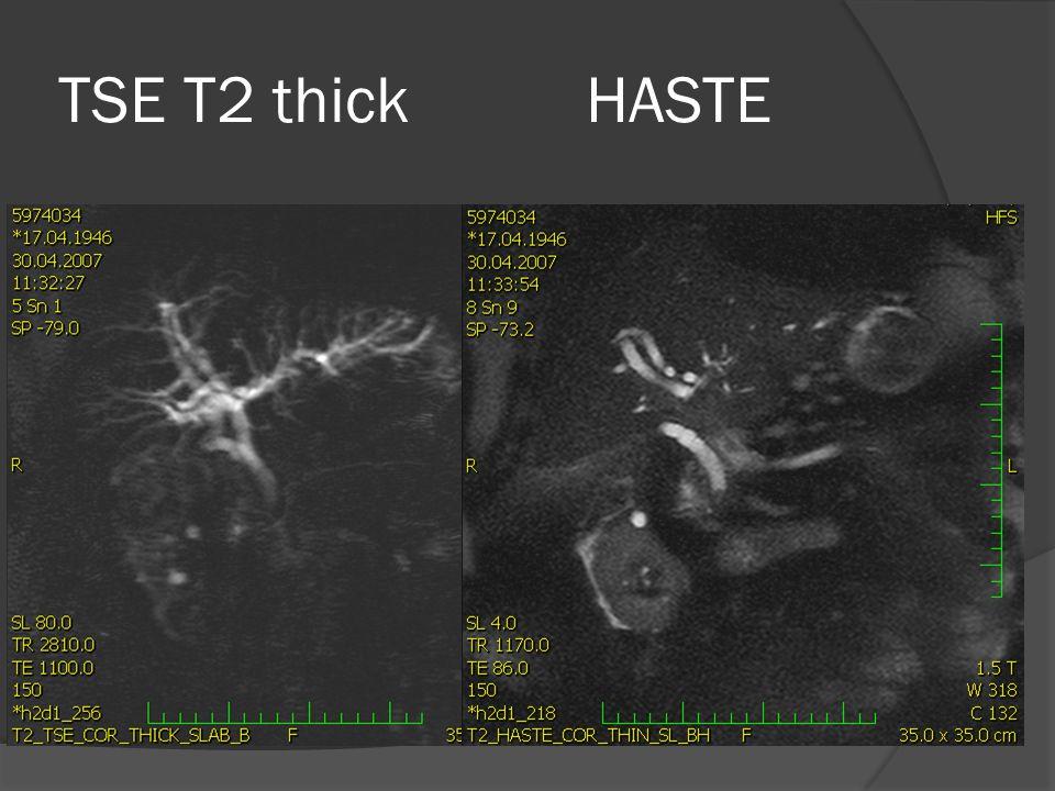 TSE T2 thick HASTE