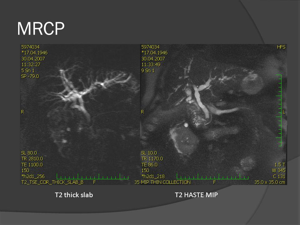 MRCP T2 thick slab T2 HASTE MIP