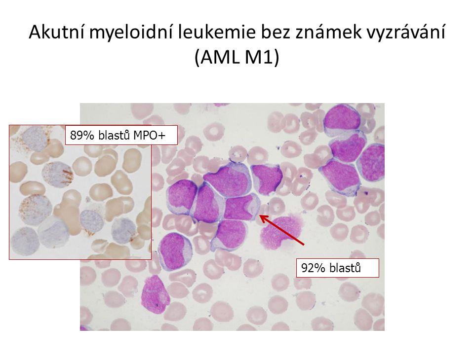 Akutní myeloidní leukemie bez známek vyzrávání (AML M1)