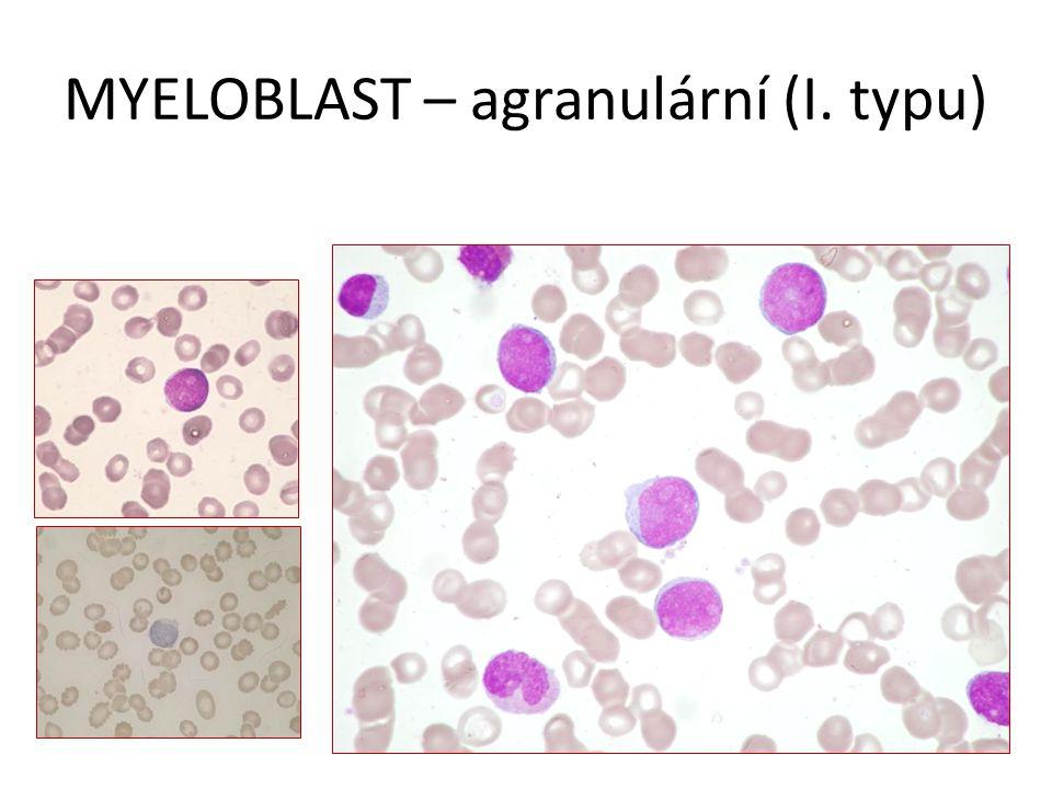 MYELOBLAST – agranulární (I. typu)