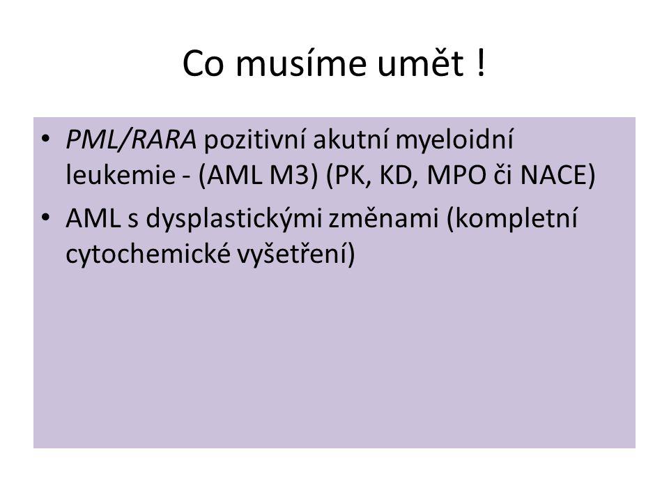 Co musíme umět ! PML/RARA pozitivní akutní myeloidní leukemie - (AML M3) (PK, KD, MPO či NACE)
