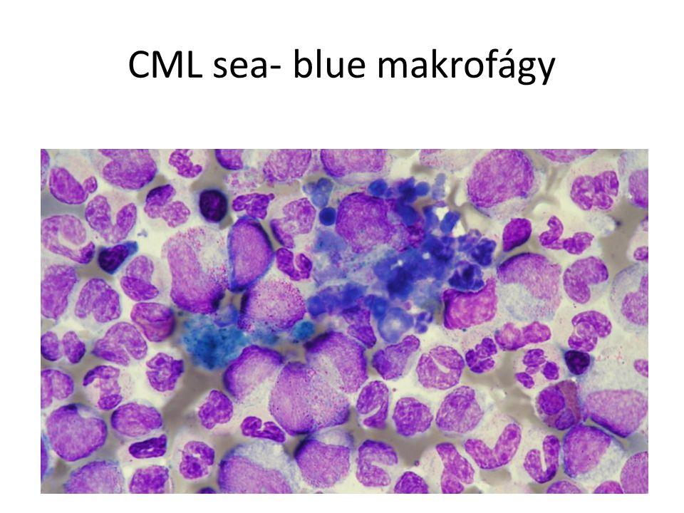 CML sea- blue makrofágy