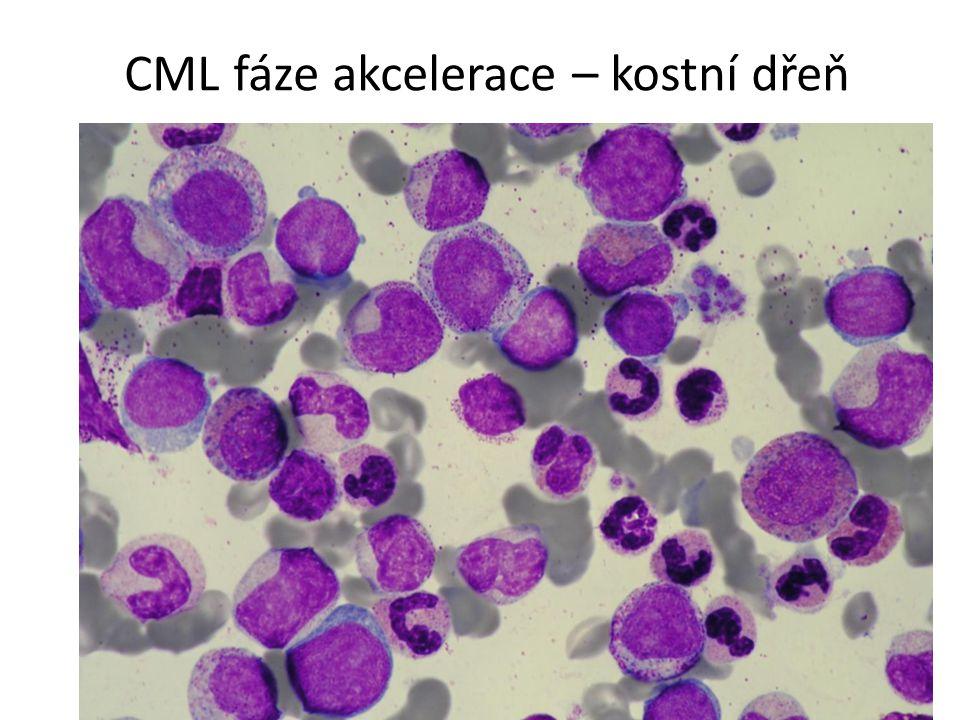 CML fáze akcelerace – kostní dřeň