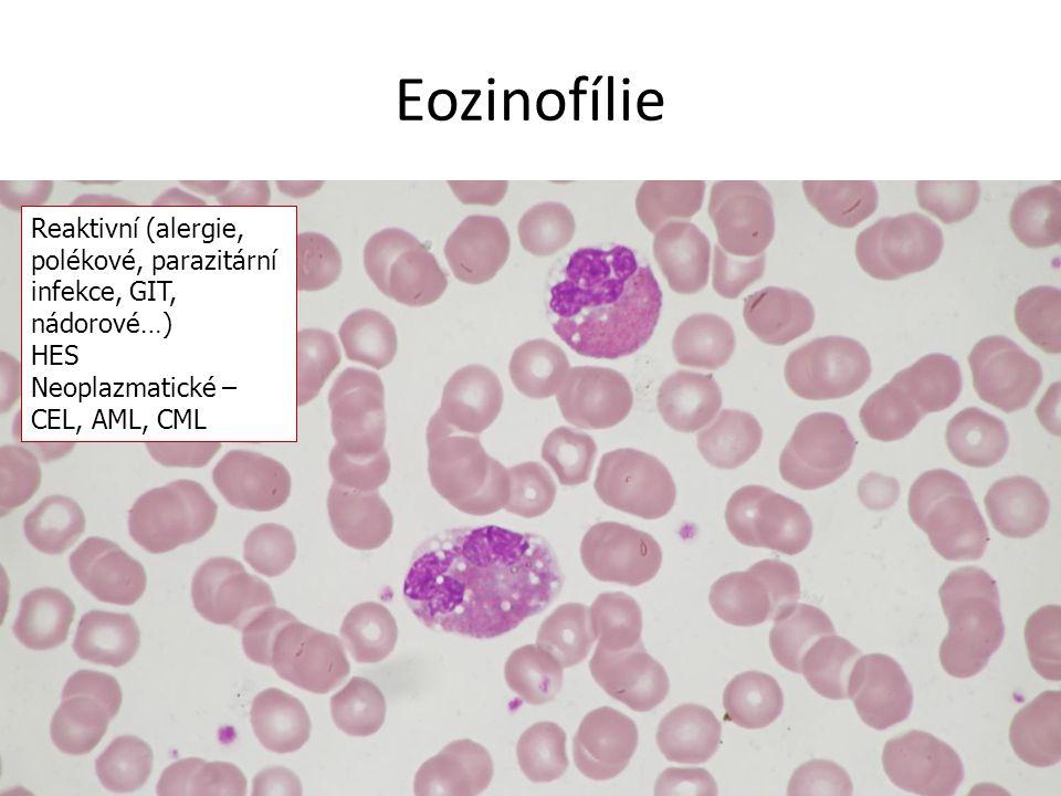 Eozinofílie Reaktivní (alergie, polékové, parazitární infekce, GIT, nádorové…) HES.