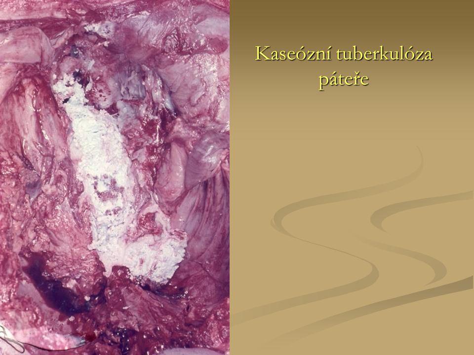 Kaseózní tuberkulóza páteře
