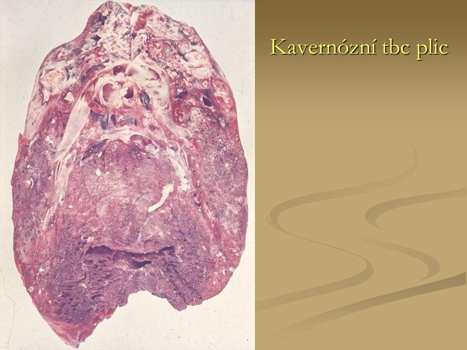 Kavernózní tbc plic
