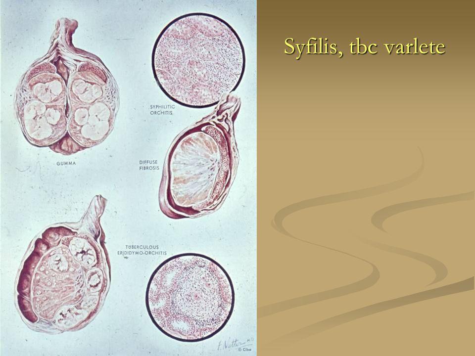 Syfilis, tbc varlete