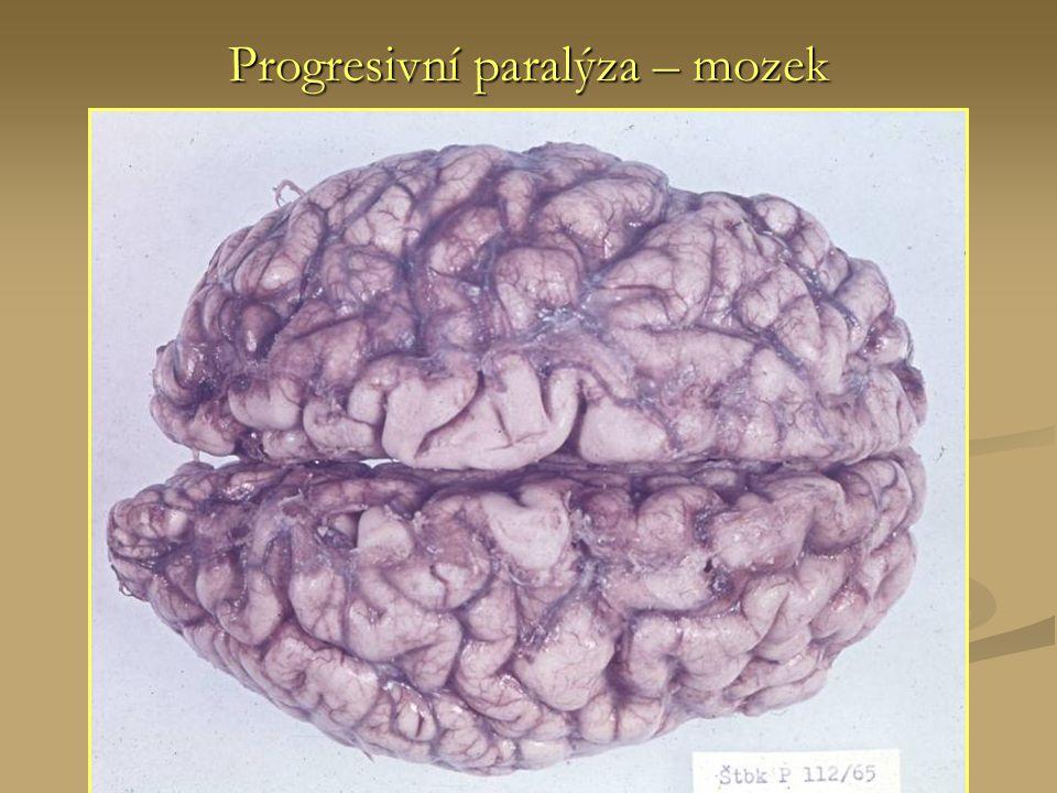 Progresivní paralýza – mozek
