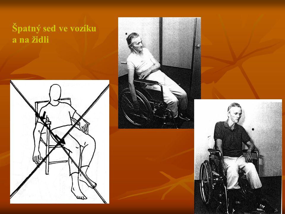 Špatný sed ve vozíku a na židli