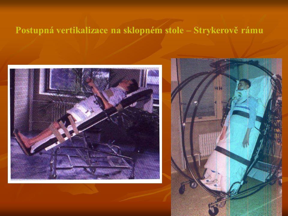 Postupná vertikalizace na sklopném stole – Strykerově rámu