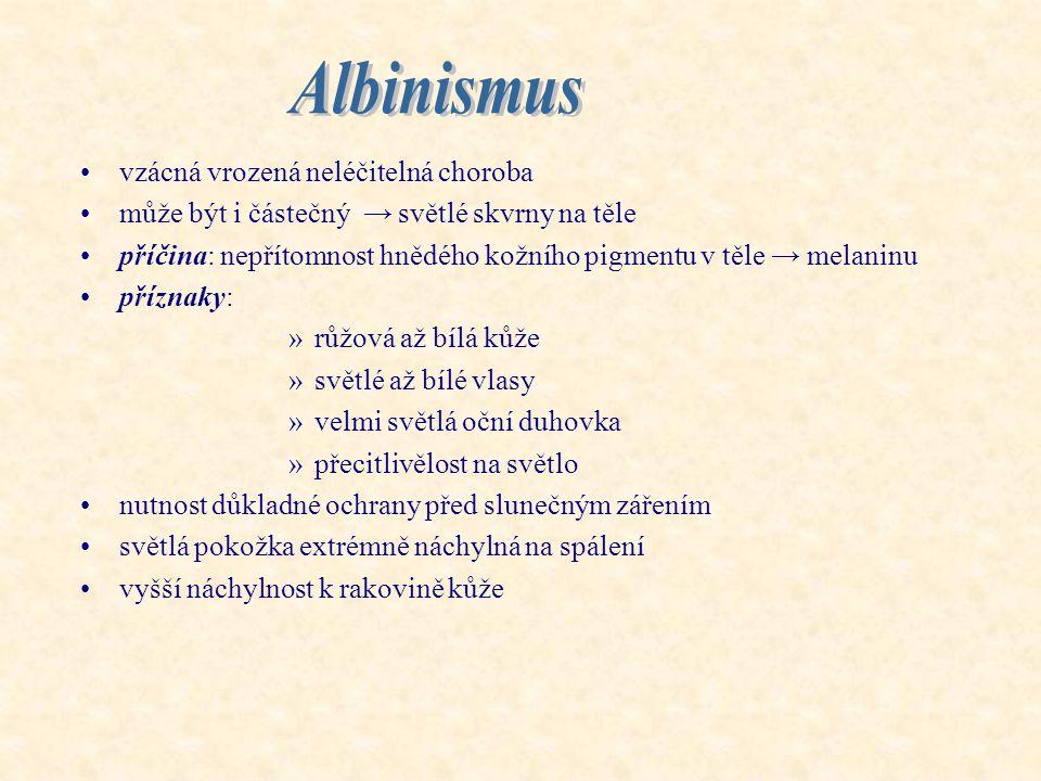 Albinismus vzácná vrozená neléčitelná choroba