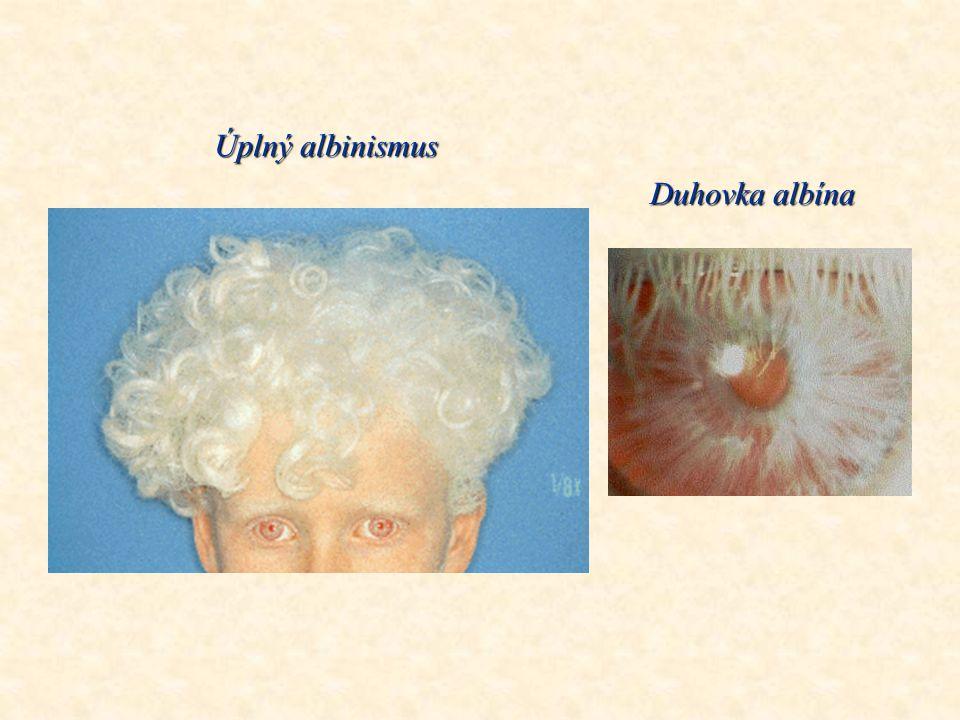 Úplný albinismus Duhovka albína