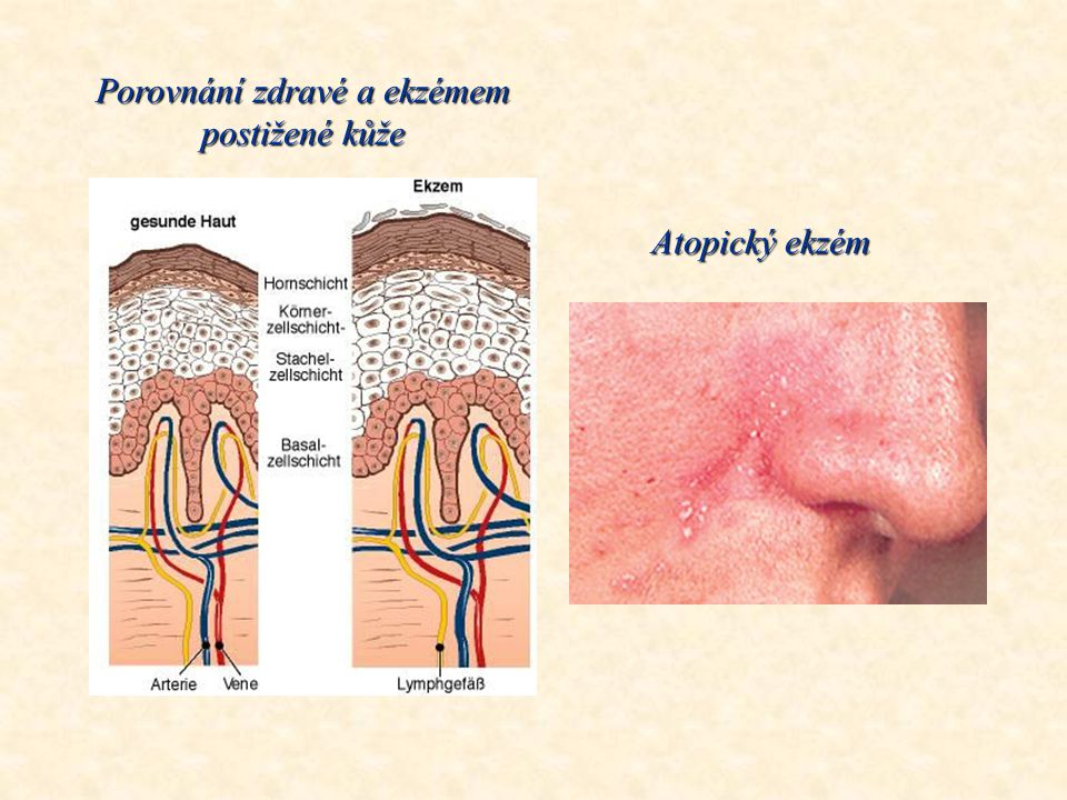 Porovnání zdravé a ekzémem postižené kůže