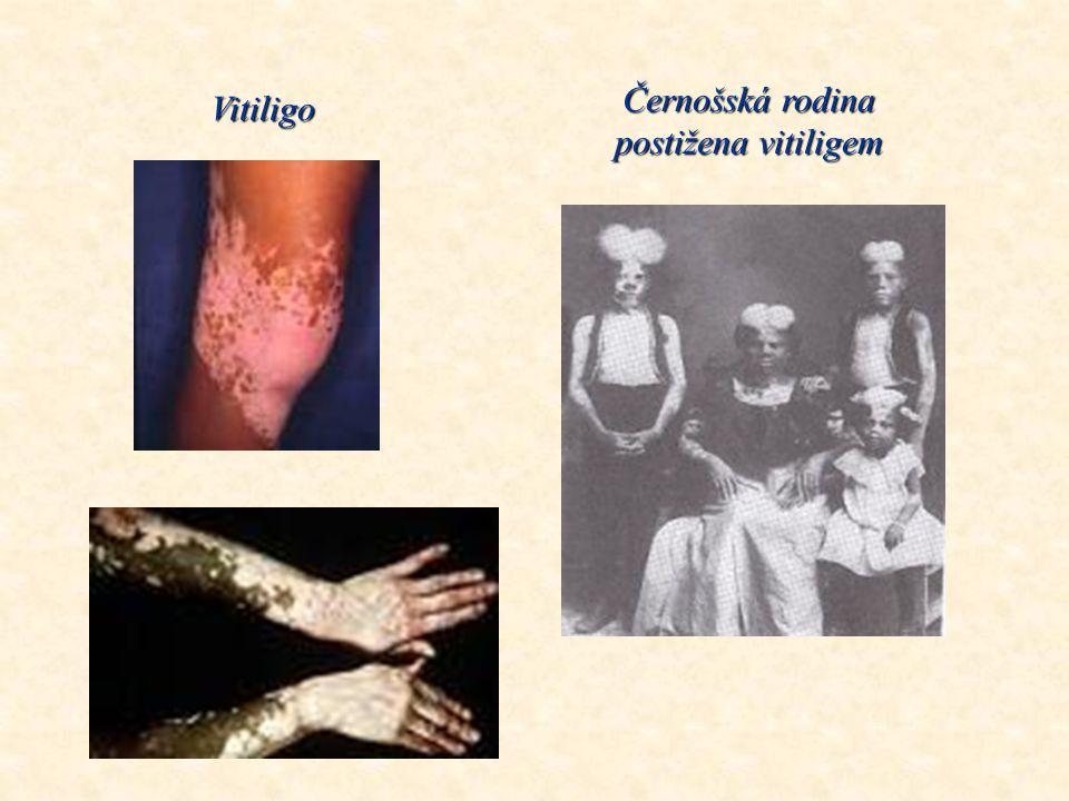 Černošská rodina postižena vitiligem