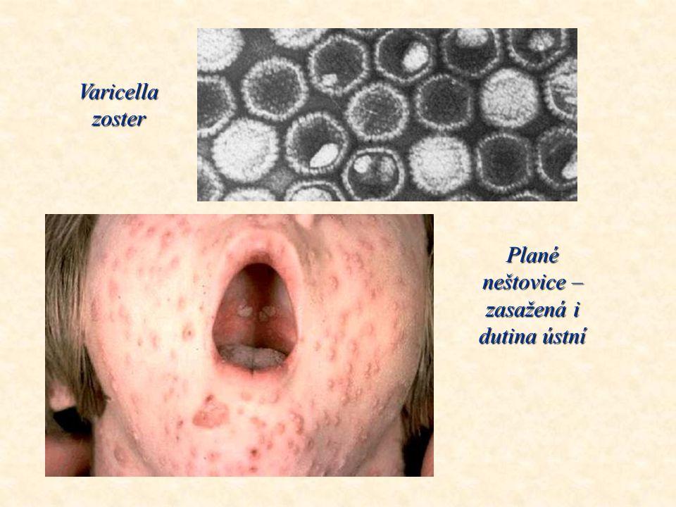 Plané neštovice – zasažená i dutina ústní