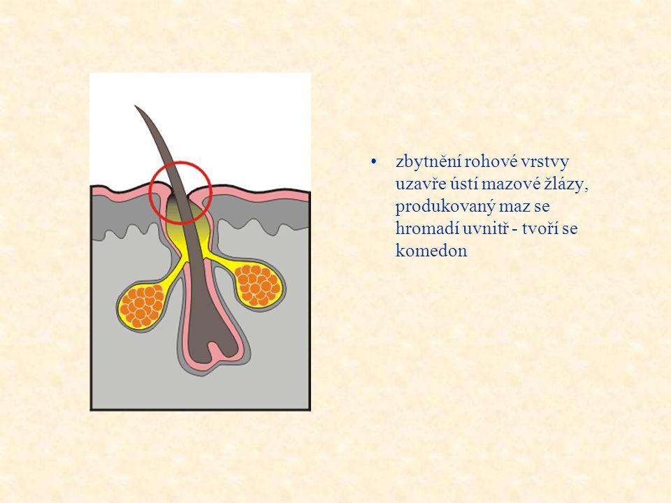 zbytnění rohové vrstvy uzavře ústí mazové žlázy, produkovaný maz se hromadí uvnitř - tvoří se komedon