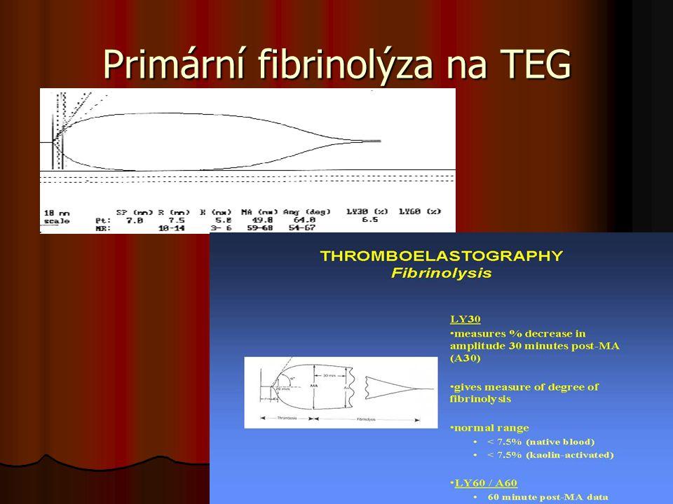 Primární fibrinolýza na TEG