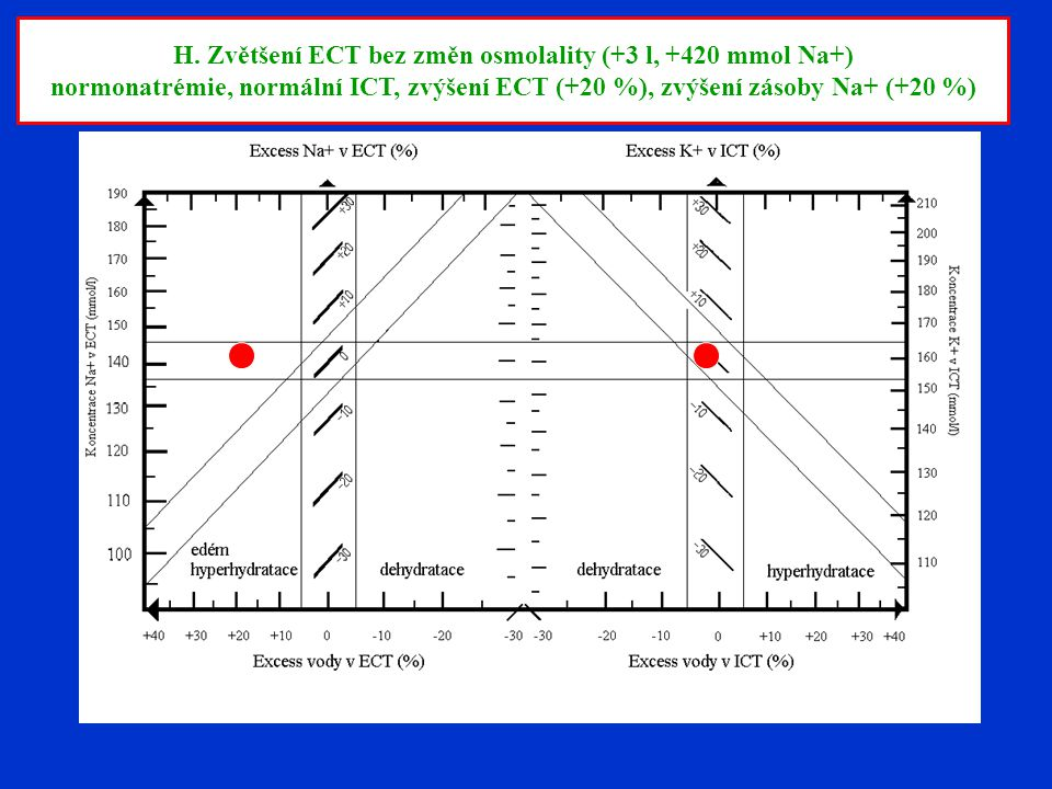 H. Zvětšení ECT bez změn osmolality (+3 l, +420 mmol Na+)