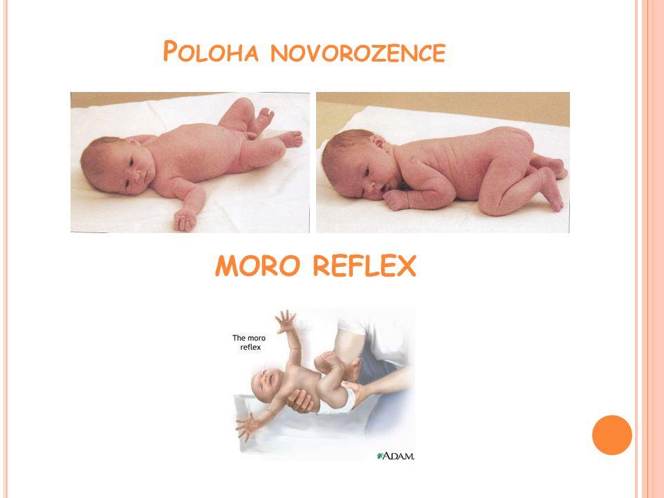 Poloha novorozence MORO REFLEX