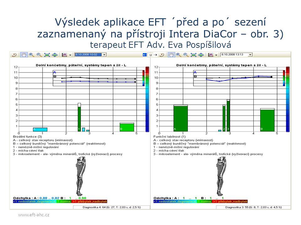 Výsledek aplikace EFT ´před a po´ sezení zaznamenaný na přístroji Intera DiaCor – obr. 3) terapeut EFT Adv. Eva Pospíšilová