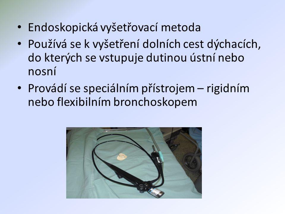 Endoskopická vyšetřovací metoda