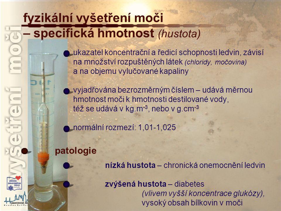 fyzikální vyšetření moči – specifická hmotnost (hustota)