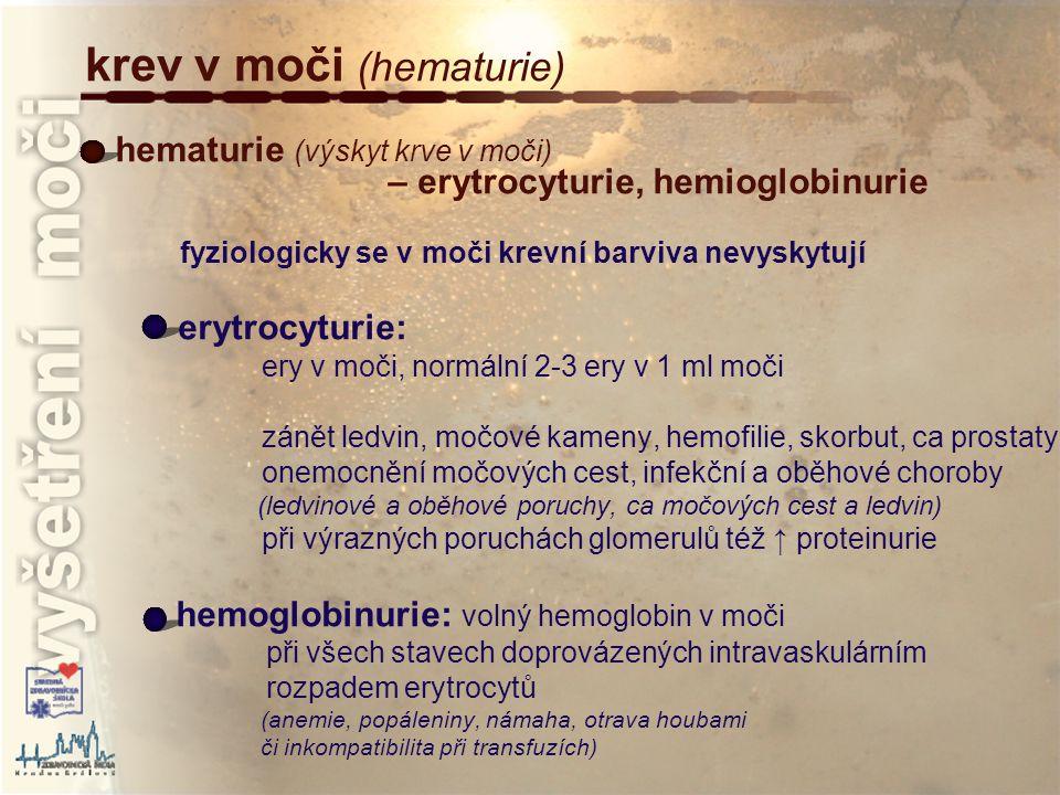 krev v moči (hematurie)